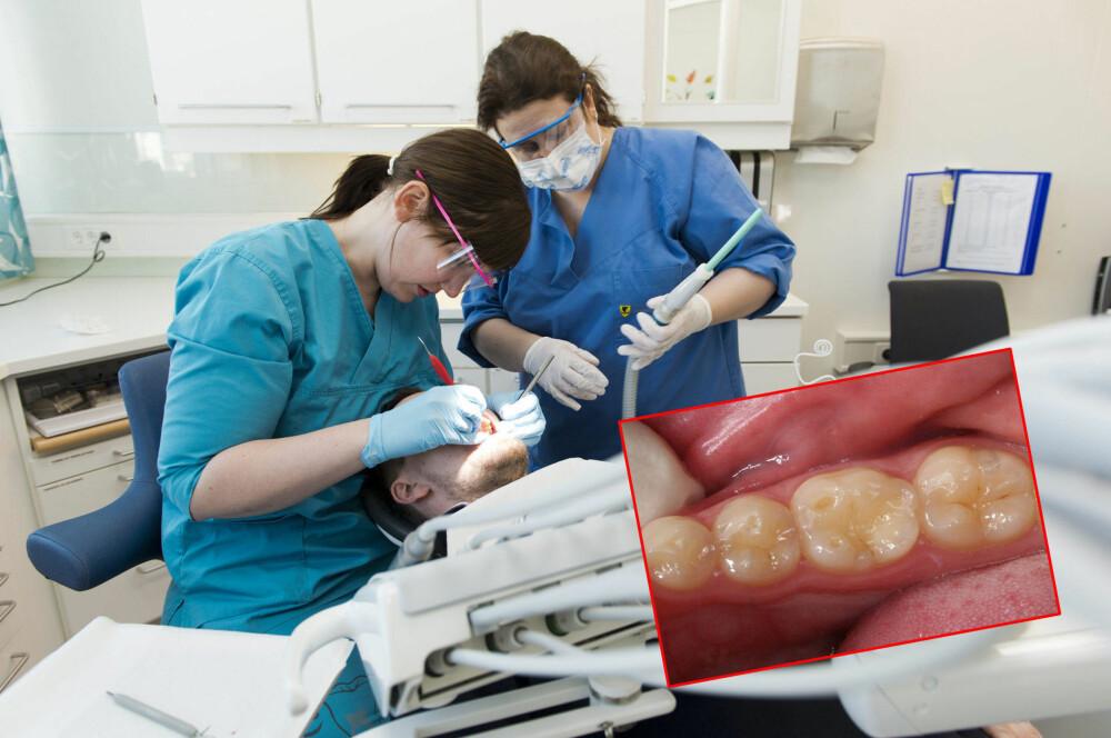 Mette Johansen ser ofte pasienter som har syreskader på tennene sine. -Det viktig å fokusere på tannhelsen, sier hun. Her med tannhelsesekretær Anniken Pettersen.
