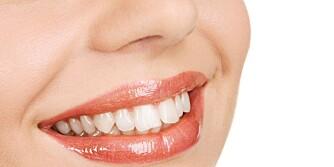 FLOTTE TENNER: Din egen innsats med tannbørste, tanntråd og fluor har mye å si for tannhelsen. © Illustrasjonsfoto: Colourbox