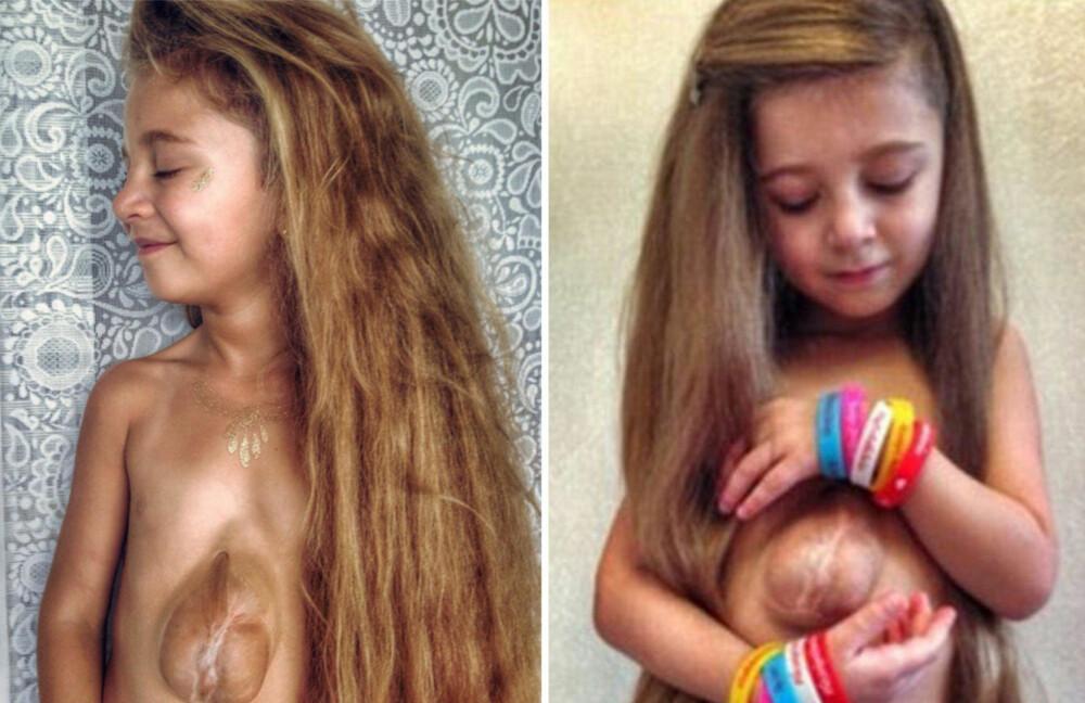 Virsaviya «Bathsheba» Borun-Goncharova ble født med hjertet utenpå brystkassen.