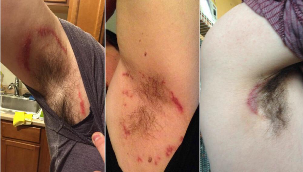SVIENDE SPRUT: Flere brukere av Old Spice-deodoranten har klaget til selskapet etter å ha fått irritasjon og utslett under armene.