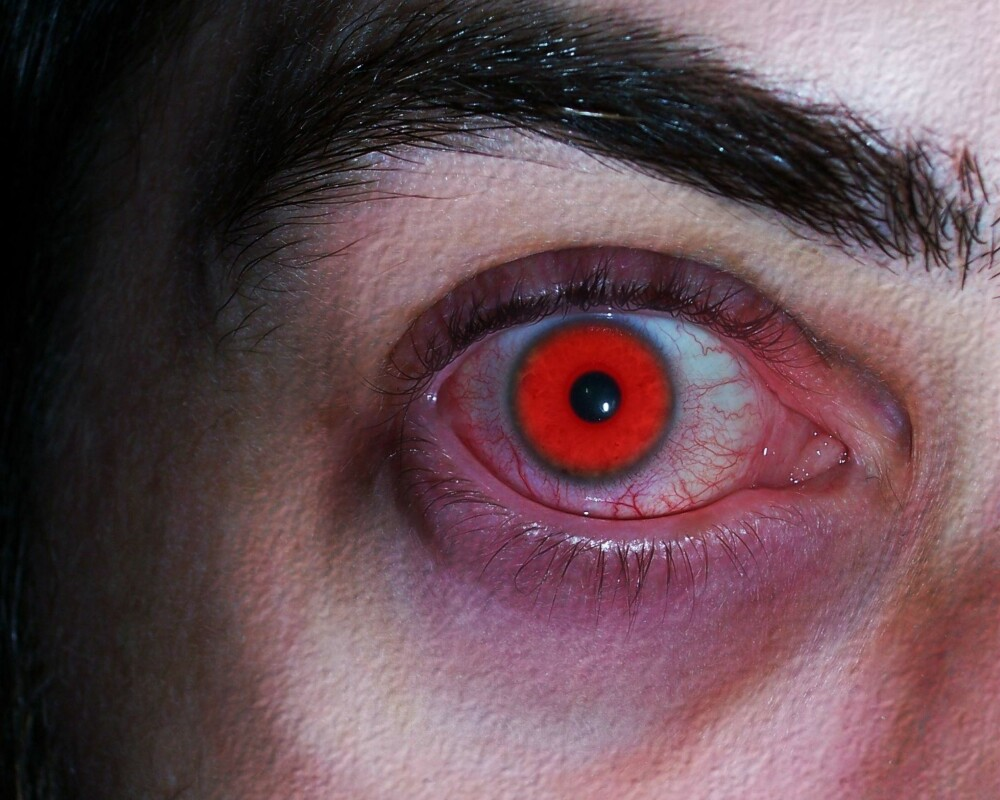 0b9572043 Fargelinser til Halloween kan gi alvorlige øyeskader - Helse