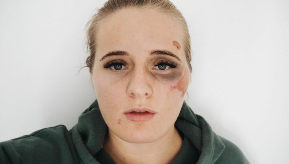 Dette bildet delte Martine på bloggen dagen etter at hun ble overfalt.