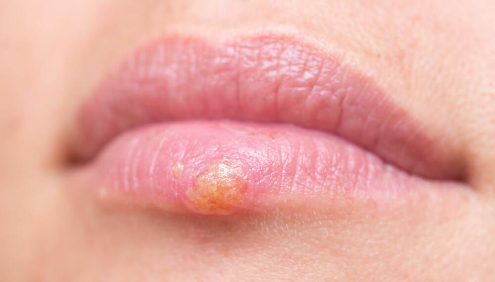 TRIGGERE: Om man ønsker å forebygge utbrudd av leppeherpes, er det lurt å finne ut hva som trigger utbrudd hos nettopp deg.