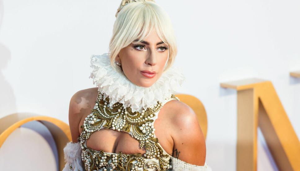 BLE UTSATT FOR TRAKASSERING OG OVERGREP: Det var en tøff vei for Lady Gaga inn i musikkbransjen.