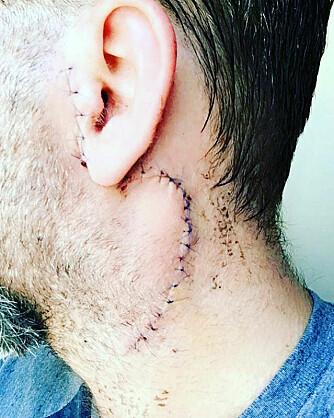 MERKET FOR LIVET: Adam ble rammet av en svulst i hodet i 2017 og bestemte seg for å takle det på egenhånd. Det var en feilvurdering.